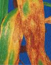 септориоз листьев2 77109